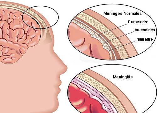 Meningitis, enfermedad que puede ser mortal en 24 horas