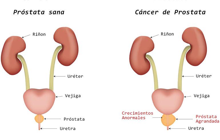 5 señales de alerta de cáncer de próstata