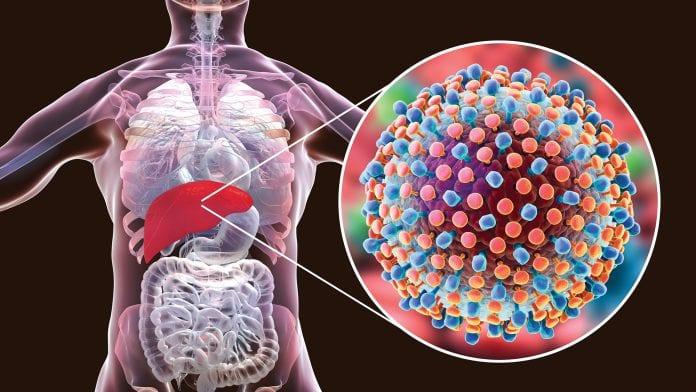 Que es la Hepatitis C