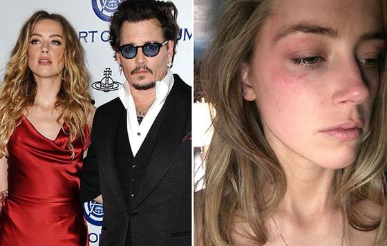 La relación tóxica que tuvieron Johnny Depp y Amber Heard
