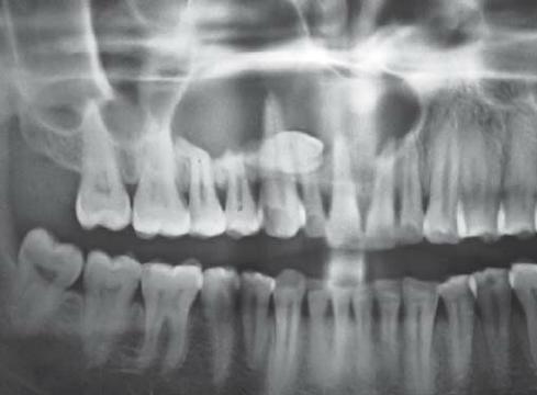 Le extraen más de 500 dientes a niño en India