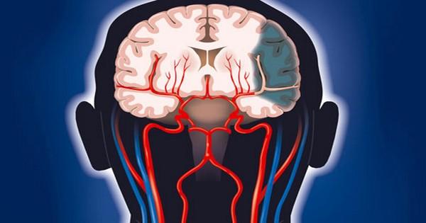 Padecer diabetes aumenta casi en cuatro veces el riesgo de sufrir un accidente vascular cerebral