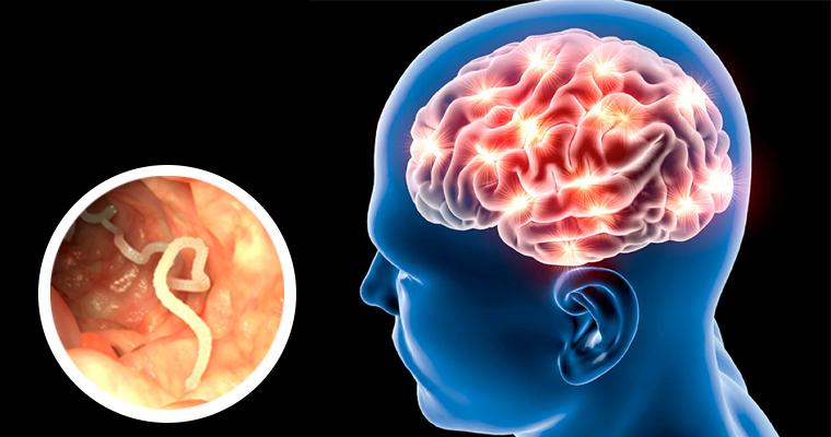 ¿Qué es la Cisticercosis?