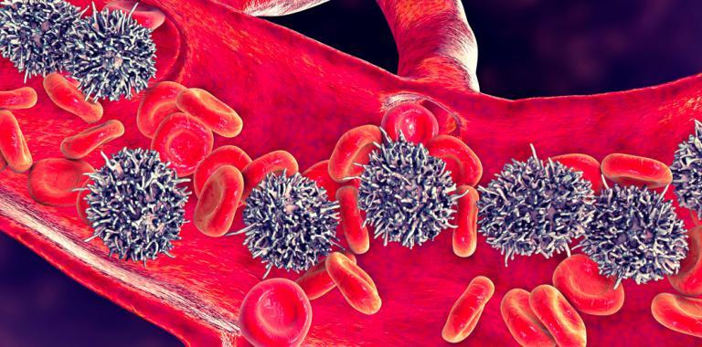 Primeros síntomas de leucemia