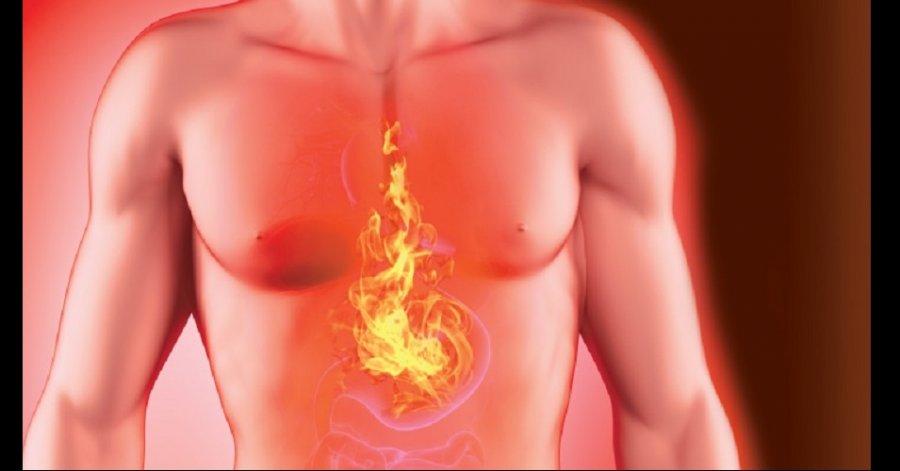 ¿Por que la Acidez estomacal?