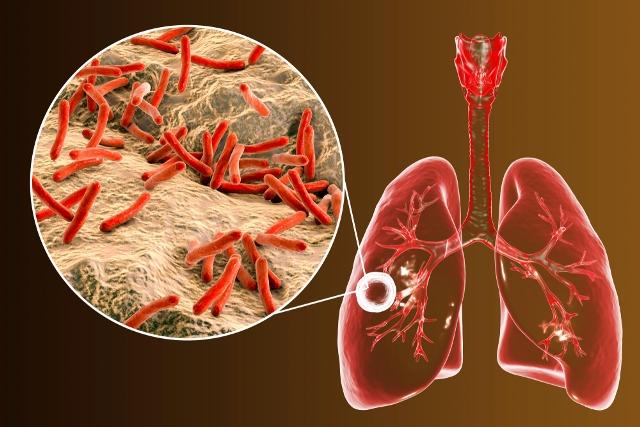Dengue y tuberculosis, enfermedades que aumentaron en 2019