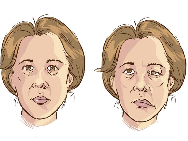 ¿Qué ocasiona parálisis facial?